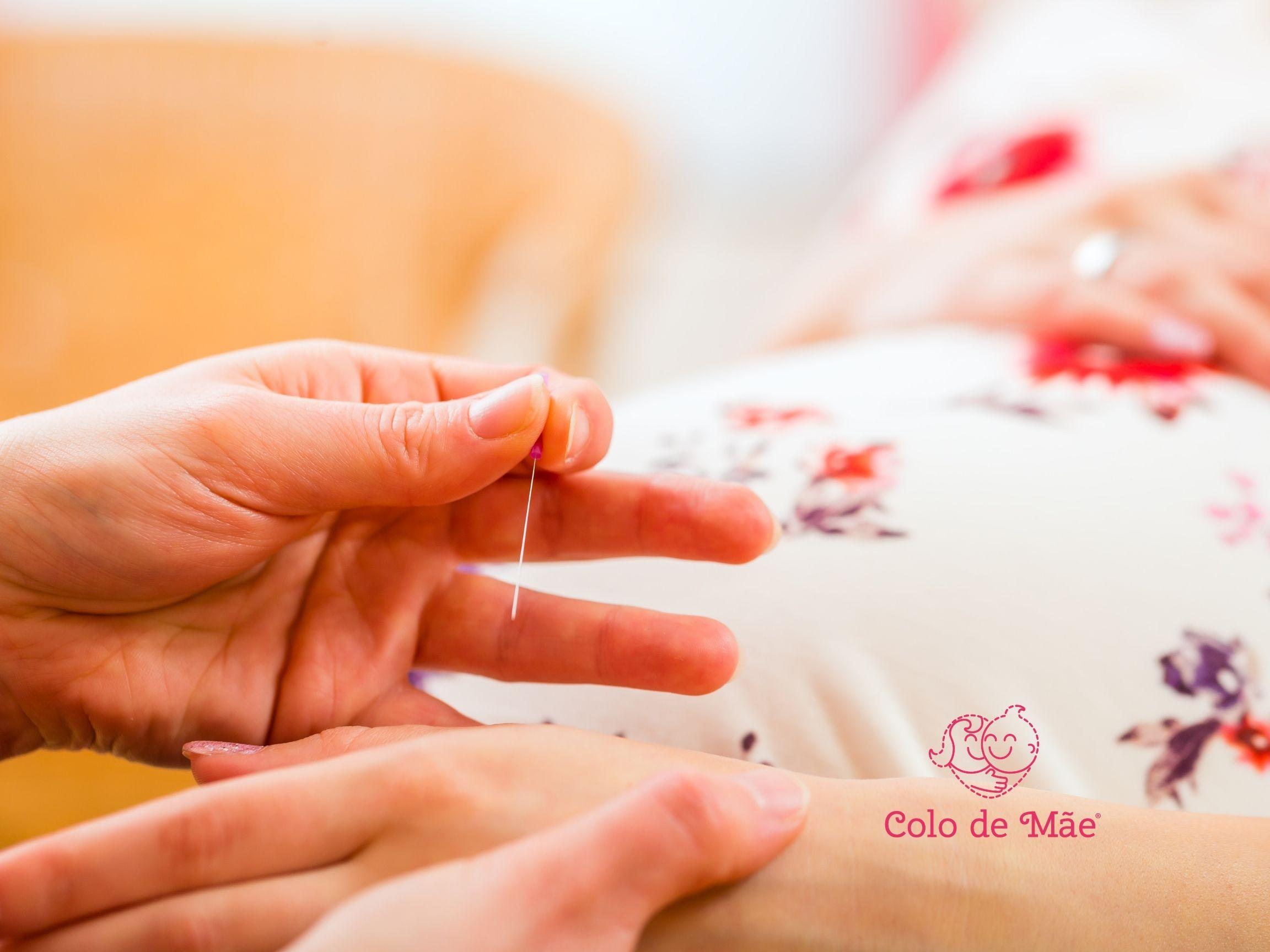 Benefícios da acupuntura durante a gestação
